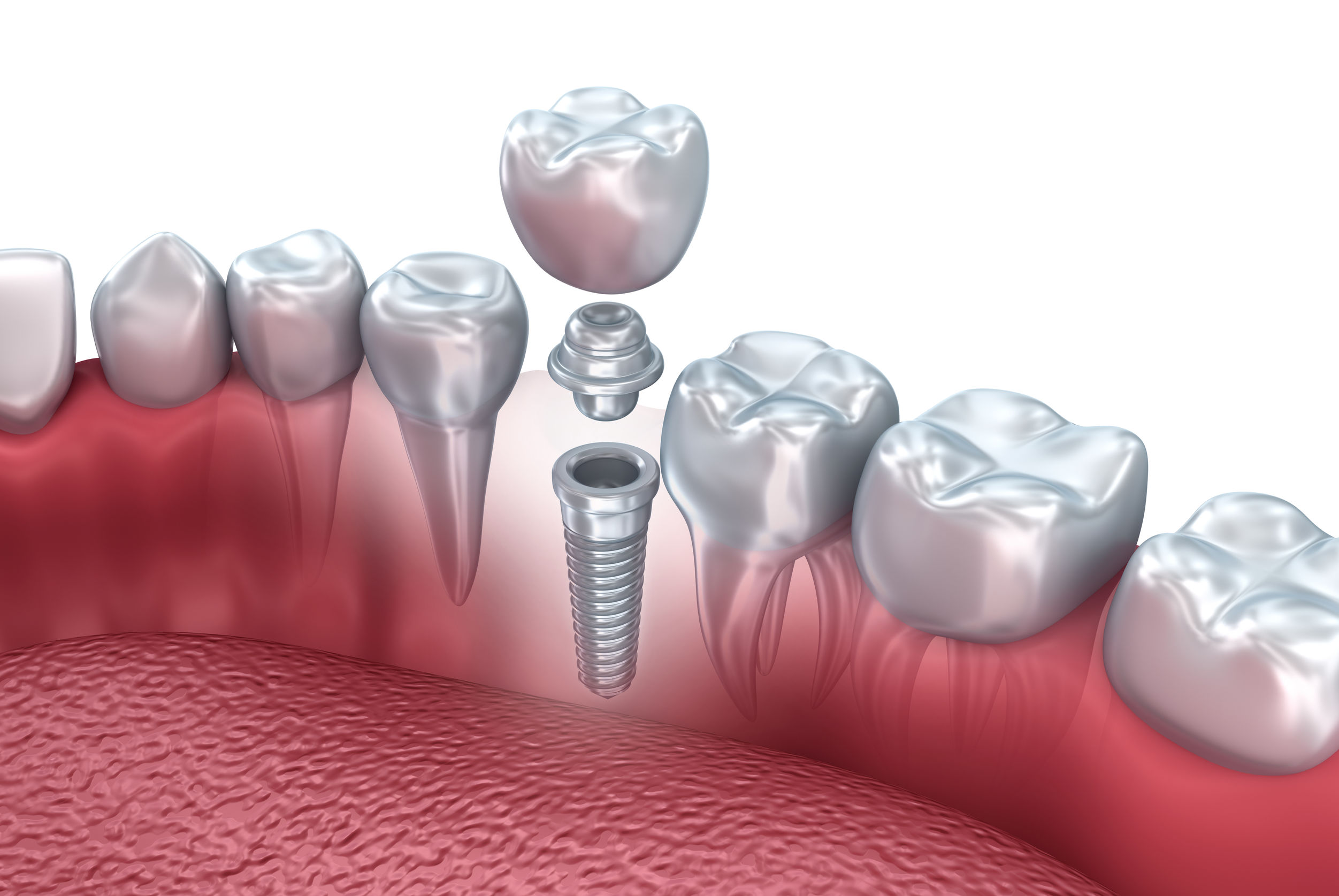 Dental Implants John Hansen DDS